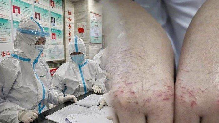VIRAL Potret Wajah & Tangan Petugas Medis Layu dan Luka-luka Kerja Keras Tangani Pasien Virus Corona