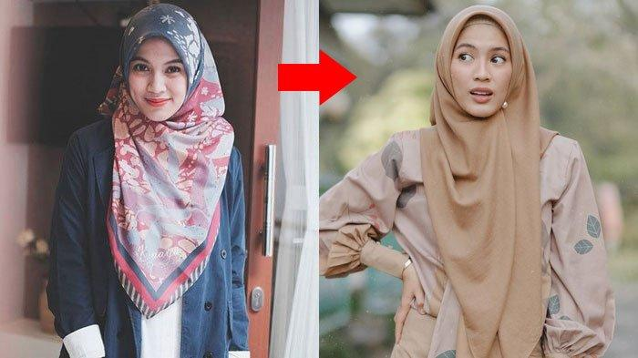 Rahasia Pipi Tirus Alyssa Soebandono, Penampilan Istri Dude Harlino Kini Berubah Jadi Sorotan Fans