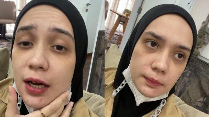 Wajah Berkeriput Putri Anne Dipuji Setinggi Langit, Istri Arya Saloka Tak Malu Apa Adanya: Bare Face