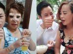 foto-viral-pasangan-suami-istri-beda-usia-si-istri-rela-operasi-wajah.jpg