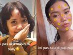 transformasi-wajah-gadis-yang-pernah-kecelakaan-parah-hingga-membuat-wajahnya-rusak.jpg