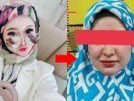 wajah-herlin-kenza-tanpa-makeup.jpg