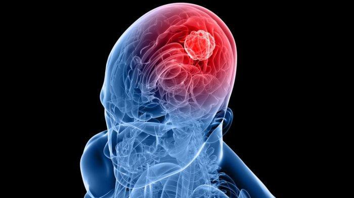 Kenali Penyebab dan Gejala Pendarahan Otak Seperti yang Dialami Tukul Arwana