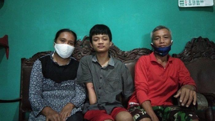 Kisah Pilu Alfian, Siswa SMK di Klaten yang Harus Kehilangan Kedua Tangan Saat Jalani PKL