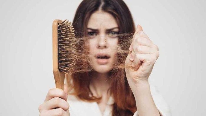 Sebaiknya Hati-hati Jika Mimpi Rambut Rontok Hingga Botak, Artinya Pertanda Akan Sakit