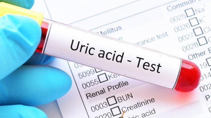 ILUSTRASI - Asam urat atau uric acid