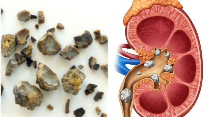 Mengenali Tanda-tanda Batu Ginjal : Dari Nyeri Pinggang Hingga Urine Berbau Menyengat
