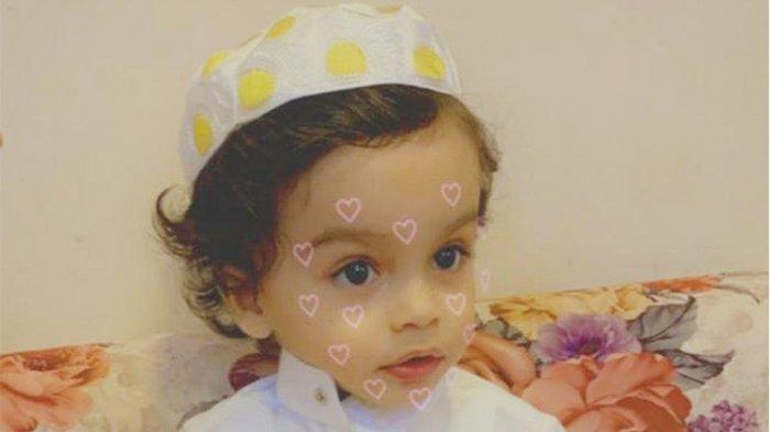 Bayi 18 Bulan Meninggal Setelah Alat Tes Swab Covid-19 Patah di Dalam Hidungnya