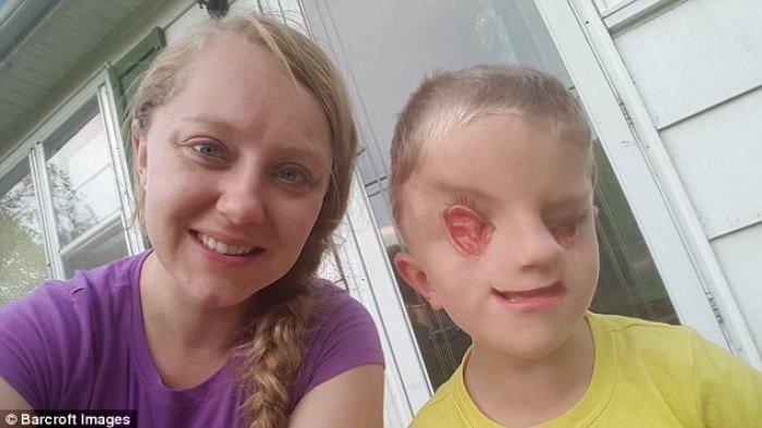 Kisah Bocah Tanpa Mata yang Pantang Menyerah Walau Sering Mendapat Komentar Kejam