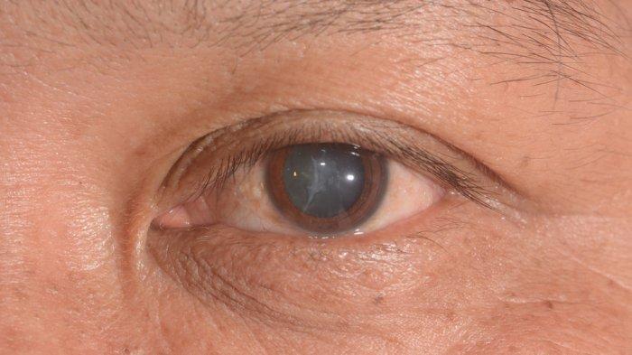 Ciri-ciri dan Gejala Diabetes Retinopati, Komplikasi Diabetes yang Menyerang Mata