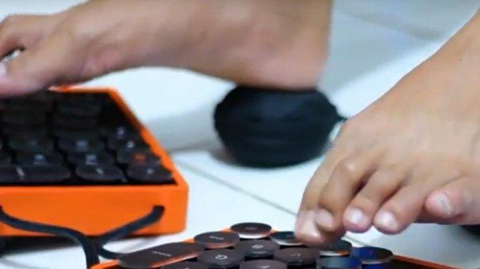 Foty Hadirkan Inovasi Keyboard-Mouse Bagi Tunadaksa Agar Tetap Produktif di Era Digital