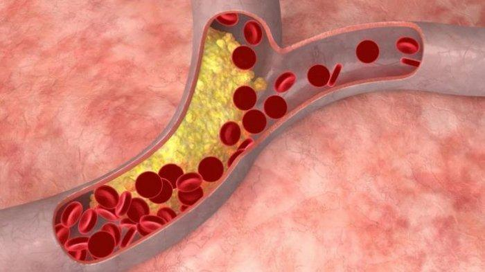 Hasil Penelitian di Swiss, Virus Corona Serang Pembuluh Darah Hingga Picu Kegagalan Organ