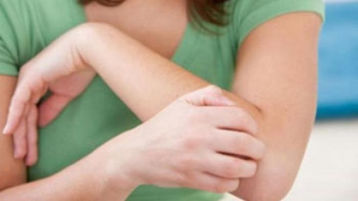 12 Tanda Diabetes yang Muncul di Kulit : Dari Kulit Kering Hingga Gatal