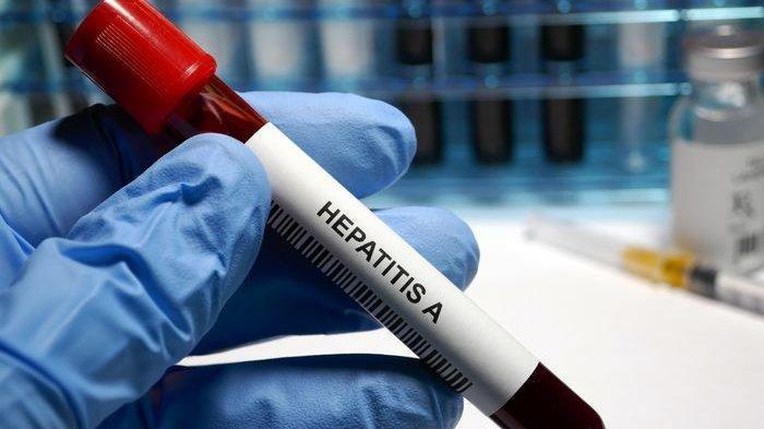 Waspada, Risiko Hepatitis A Meningkat selama Musim Hujan