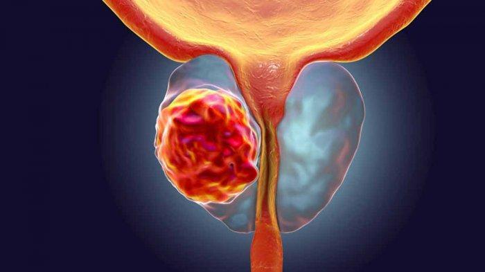 Gejala Kanker Prostat : Kesulitan Kencing Hingga Darah di Air Mani