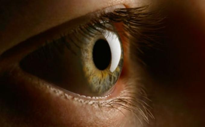10 Penyebab Mata Sering Berair : dari Alergi Hingga Infeksi Bakteri atau Virus