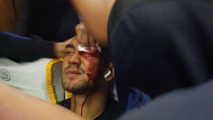 Kronologi Pelemparan Batu ke Bus Persib Bandung, Febri Haryadi dan Omid Nazari Terluka di Wajah