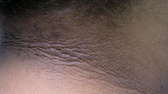 Muncul Warna Hitam di Lipatan Leher, Hati-hati Bisa Jadi Pertanda Diabetes