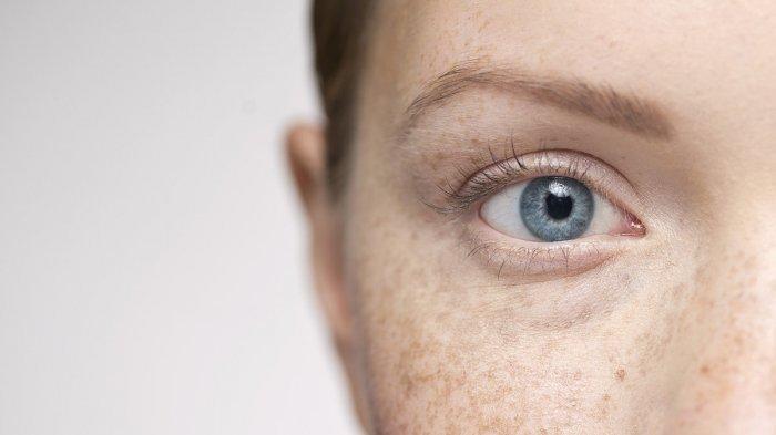 Benarkah Polusi Udara Merusak Mata?