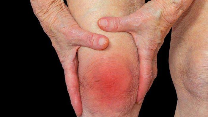 Inilah Gejala-gejala yang Muncul Pertanda Anda Menderita Rematik