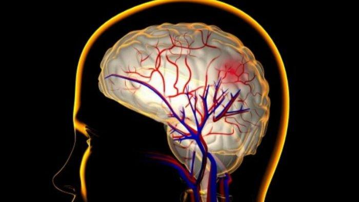 Silent stroke atau stroke senyap