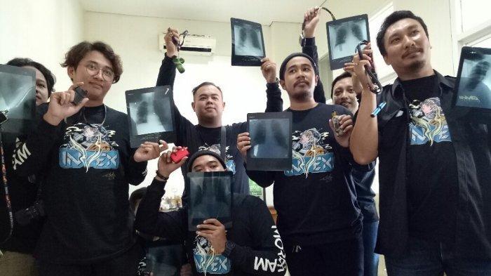 Tepis Stigma Negatif, Pengguna Vape di Yogyakarta Lakukan Rontgen Massal