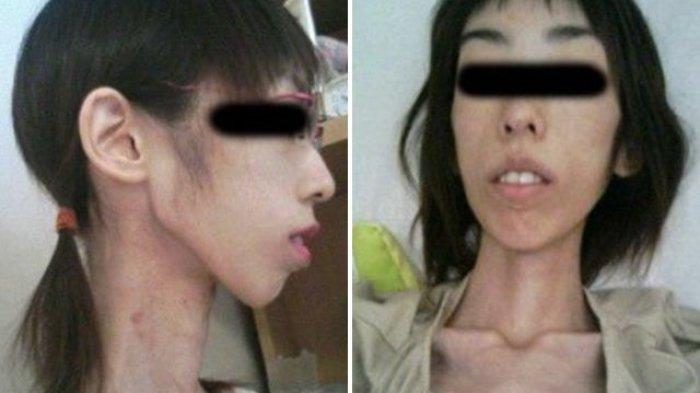 wanita-dibiarkan-kelaparan-oleh-kakeanya-selama-beberapa-tahun_20180210_175510.jpg