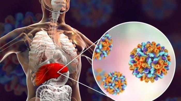 Waspadai Risiko dan Gejala Hepatitis A, Bisa Berpotensi Picu Radang hingga Pengaruhi Fungsi Hati