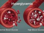 gejala-dan-penyebab-hiperglikemia.jpg