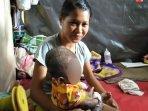kisah-bayi-penderita-dermatitis-atopik-di-sleman-harus-konsumsi-sususeharga-rp-313-ribu-per-hari.jpg