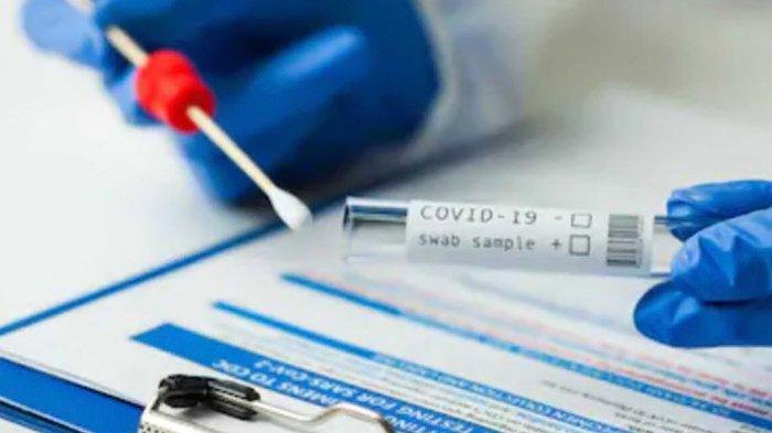 Petugasnya Pakai Alat Rapid Test Antigen Bekas di Bandara Kualanamu, Kimia Farma: Pelanggaran Berat