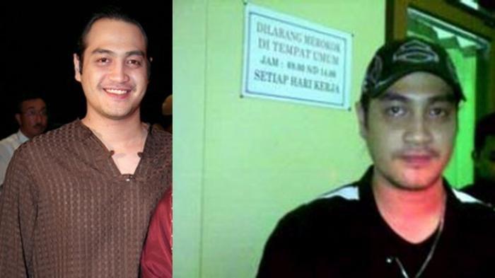 Aktor Ferry Irawan Kini Sakit Keras, Pembuluh Darah di Bagian Kepalanya Pecah, Sahabat Galang Dana