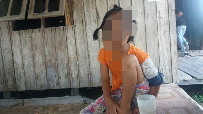 Bocah Lima Tahun Dianiaya dan Ditinggalkan Orangtuanya di Warung di Sampit Kalteng