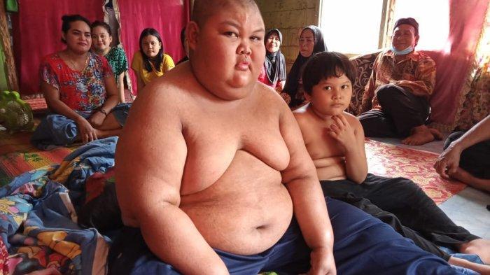 Usai Jalani Ruqyah di Tempat ini, Kondisi Bocah Obesitas di Tanahlaut Kalsel Kian Membaik