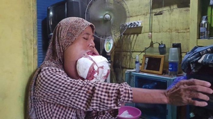 Menderita Tumor Mulut, Perempuan Banjarmasin Ini Selalu Sedia Cermin untuk Ngecek Keluarnya Darah