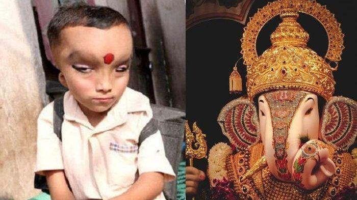 Karena Fisik Tubuh Tidak Biasa, Bocah Ini Dianggap Titisan Dewa Ganesha, Banyak yang Minta Didoakan
