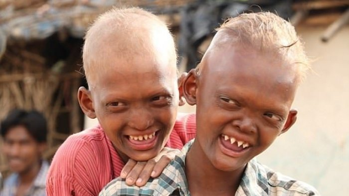 Dulu Diejek, Disebut 'Anak Setan' dan Diasingkan, Kini Nasib Dua Bersaudara Ini Berubah Drastis