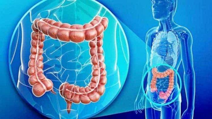 Deteksi Lebih Dini Kanker Usus Besar, Gejalanya Sering Dianggap Sepele dan Tak Disadari