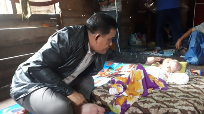 Balita Penderita Tumor Ganas di Mata Ini Bikin Haru Ketua DPRD HSU
