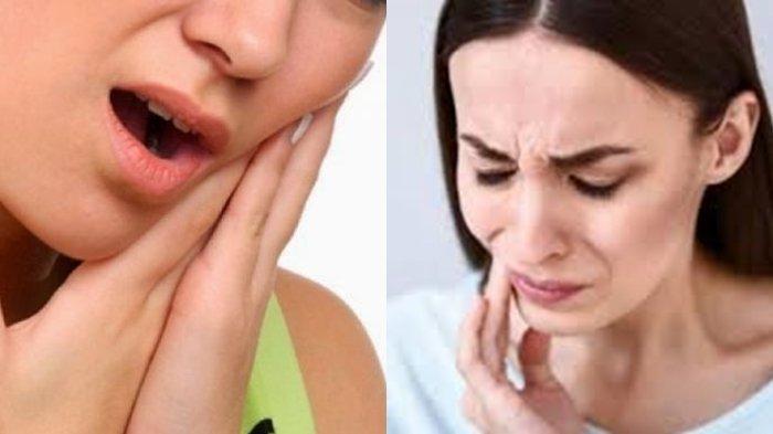 Gigi Berlubang Jangan Anggap Sepele Ini Bahayanya Tribun Kalteng