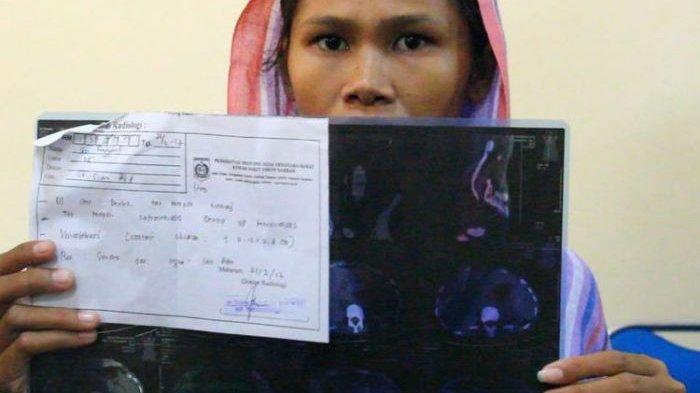 Rabitah, TKW yang Ginjalnya Dicuri di Qatar, Begini Nasibnya Sekarang