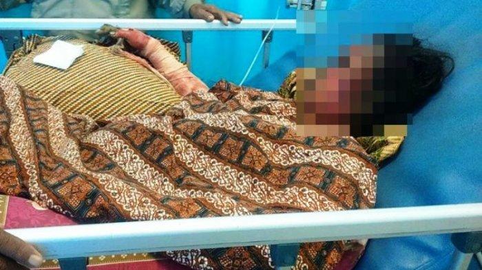 Koma Setelah Dibakar Mantan Suaminya, Wanita Ini Akhirnya Meninggal