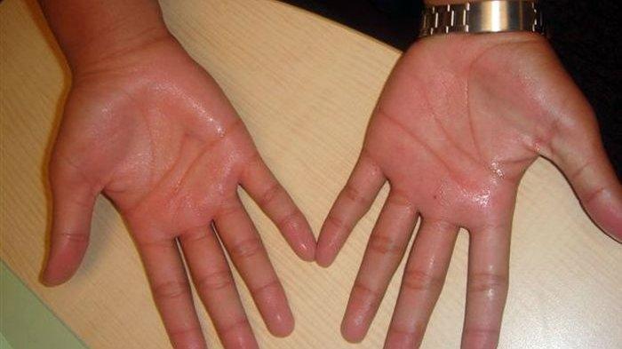 Telapak Tangan Selalu Berkeringat dan Basah? Belum Tentu Jantung Lemah, Kenali Gejala Ini
