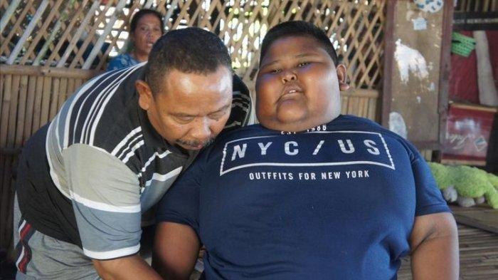 Sehari Sampai 7 Kali Makan, Bocah 7 Tahun Berbobot 97 Kg Asal Karawang Tak Bisa Tidur Terlentang