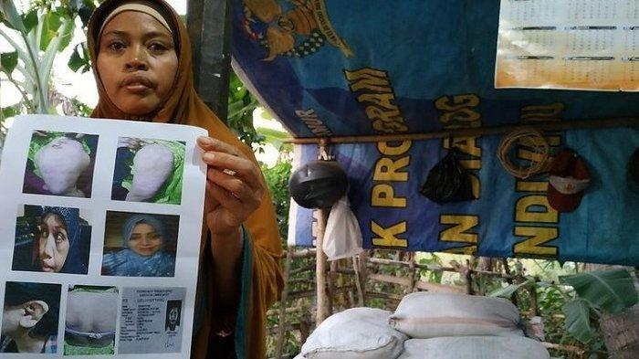 Dijual Rp 110 Juta, TKW asal Lombok Ini Ini Disiksa dan Disiram Air Panas oleh Majikan di Arab Saudi
