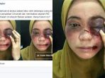 tribunkalteng-berita-hoax-soal-seorang-ustazah-dianiaya_20171125_082209.jpg