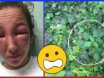 tribunkateng-wajah-bengkak-karena-tanaman-beracun_20180311_094408.jpg