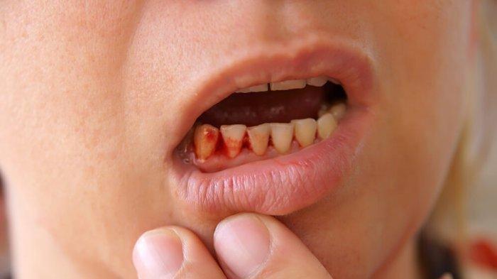 Apakah Gigi Berdarah Bisa Membatalkan Puasa? Ini Penjelasan dan Hukum Gosok Gigi saat Puasa