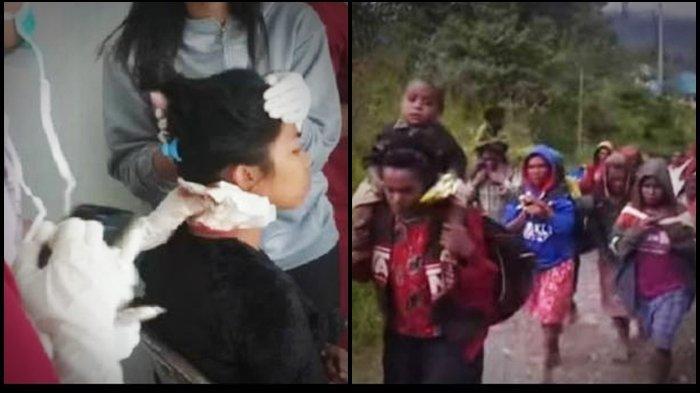 TERBARU! Aksi Brutal KKB Papua Serang Emak-Emak, Pakai Parang Kepala Terluka, Intan Jaya Mencekam
