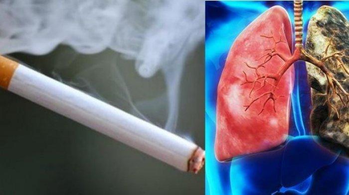 Tau Kah Anda, Kanker Paru-paru Jadi Kanker Paling Mematikan di Dunia, Berikut ini 6 Cara Mencegahnya